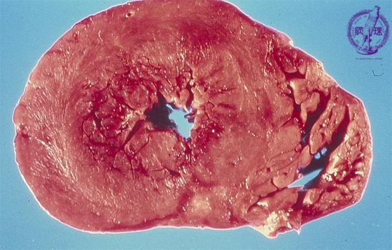 心アミロイドーシスマクロ像 マクロ像:心室レベルの横断面。アミロイドの沈着により、心筋は暗赤色で