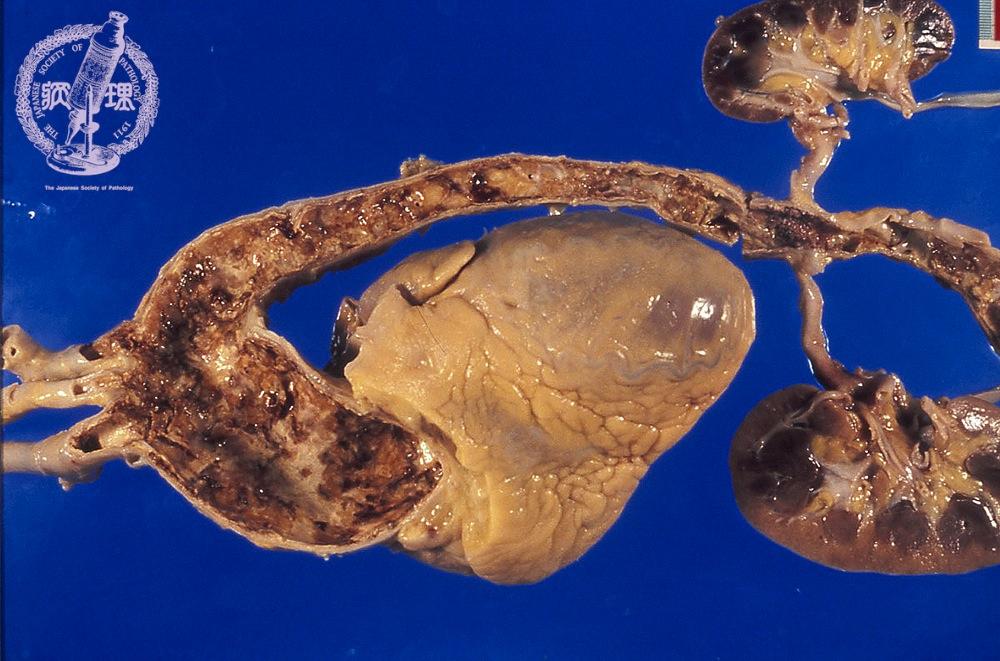 3.循環器 (13)高安動脈炎|病理コア画像