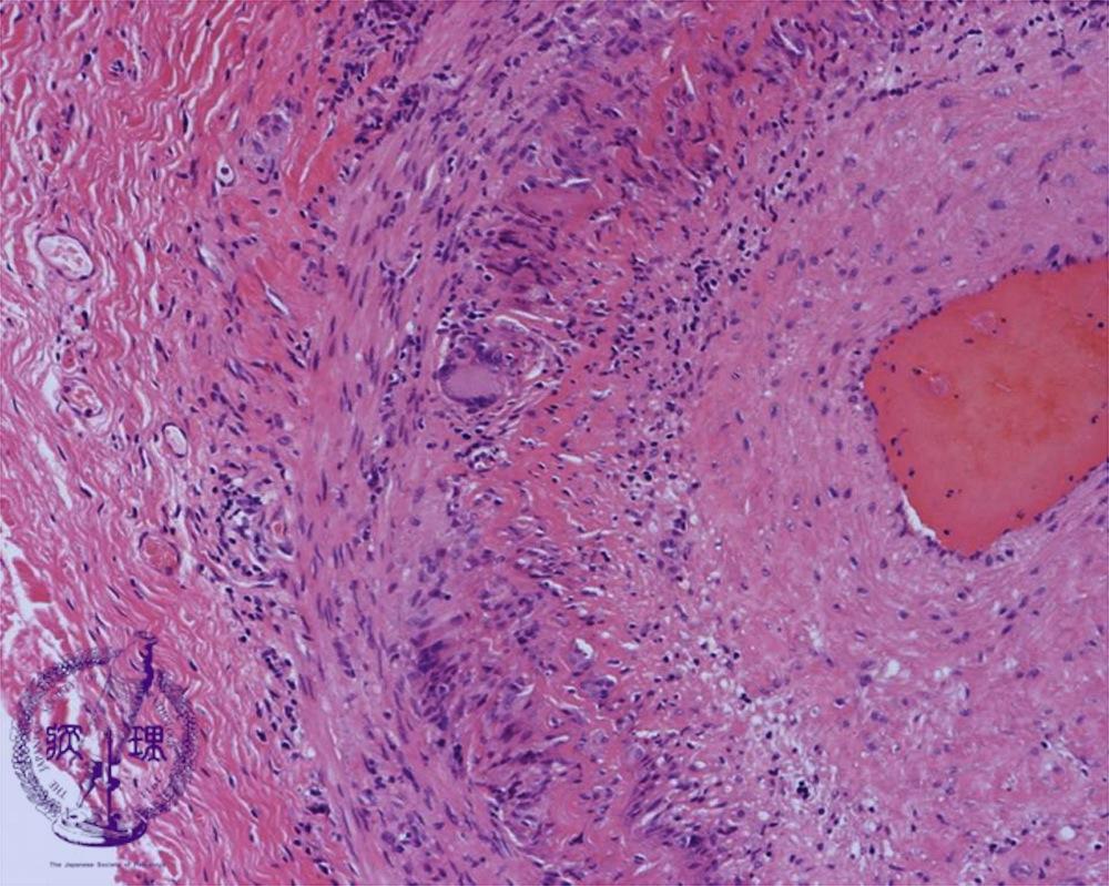 3.循環器 (14)巨細胞性動脈炎|病...