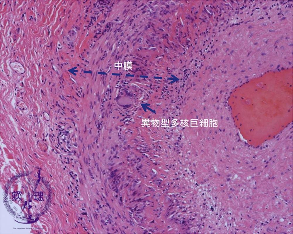 3.循環器 (14)巨細胞性動脈炎|病理コア画像