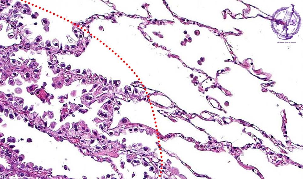 非小細胞肺癌(腺癌)ミクロ像(HE強拡大) ミクロ像(HE強拡大):腺癌の辺縁では、既存の肺胞上