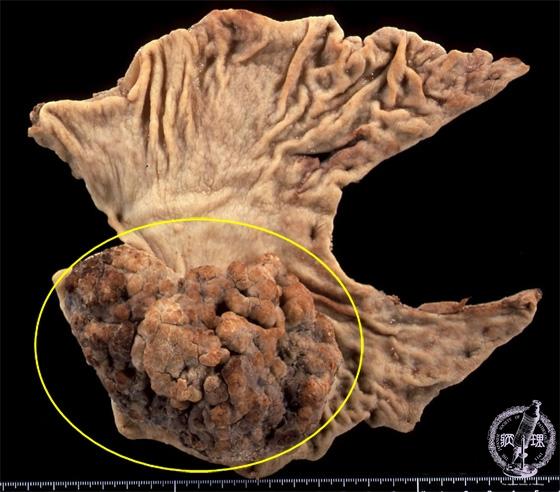 マクロ像:胃体下部後壁側の ...