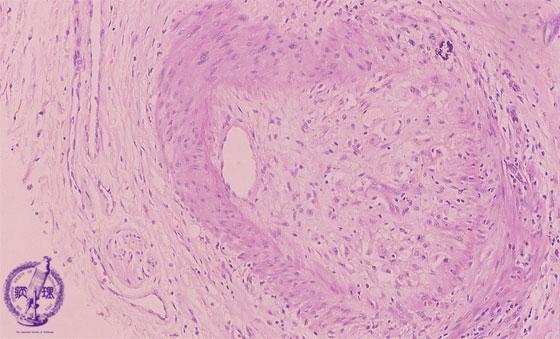 10.肝臓 (11)移植拒絶反応|病理コア画像