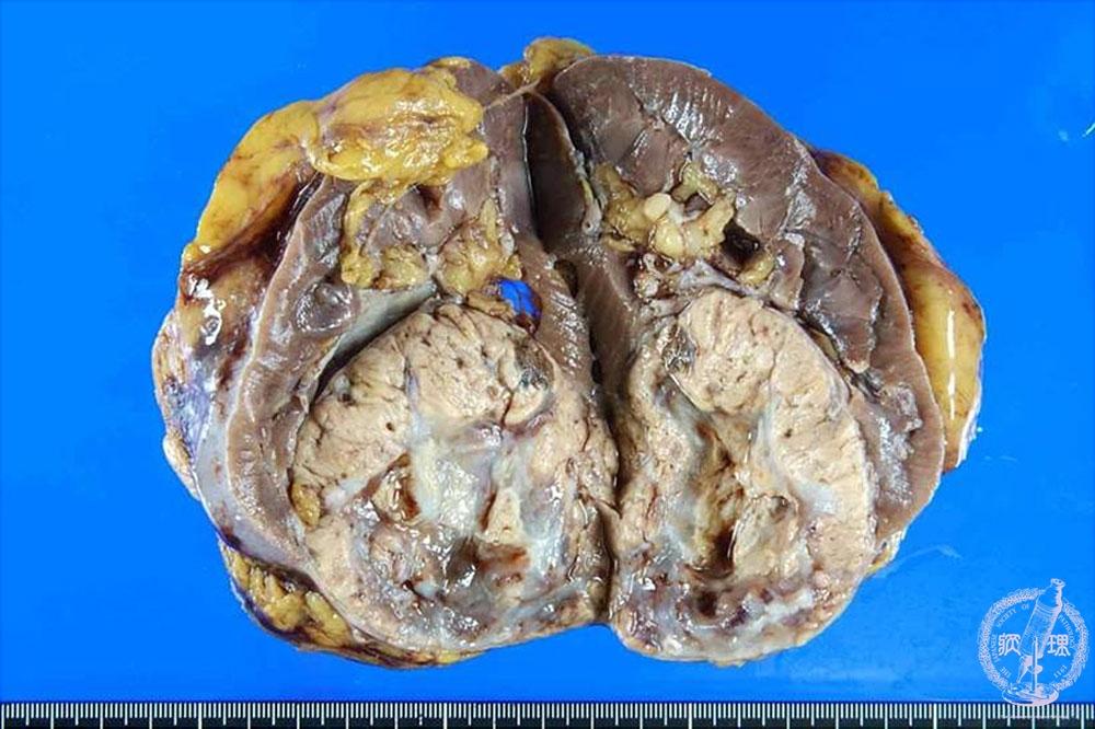 12.腎臓・泌尿器 (17)腎細胞癌|...