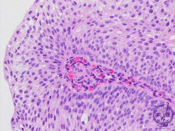 12.腎臓・泌尿器 (20)尿路上皮癌(移行上皮癌)|病理コア画像