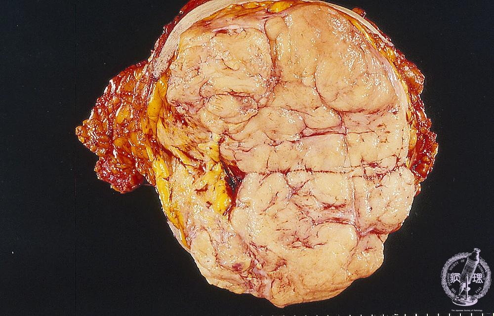 14.乳腺 (3)葉状腫瘍|病理コア画...