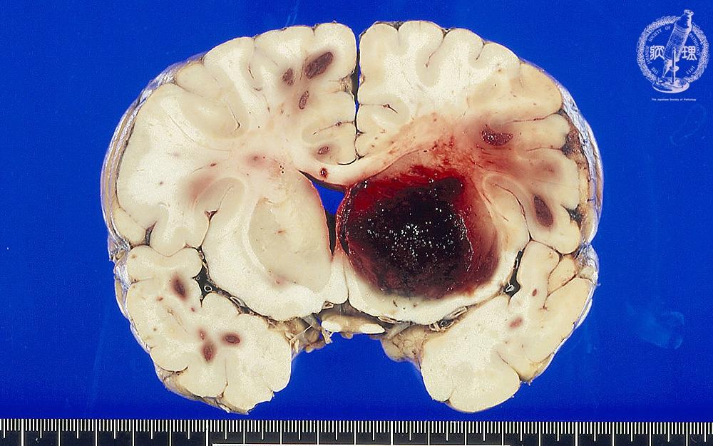 17.脳神経 (1)脳出血(脳内出血...
