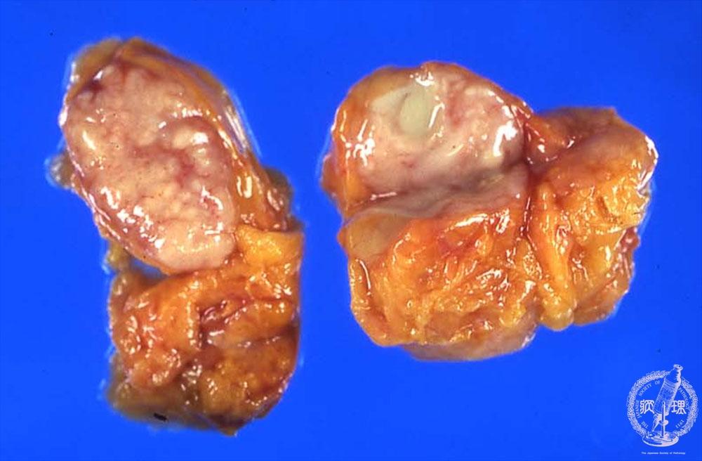 2mph Node 2 Tuberculous Lymph Nodespathology Core Pictures